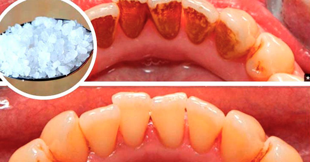 Как удалить зуб у беременной 76